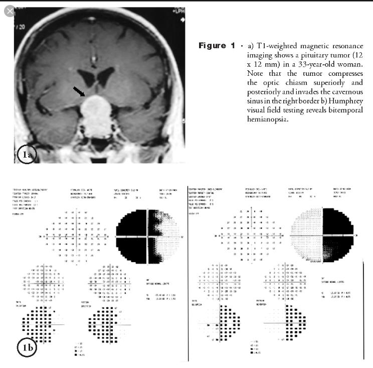HFA Pituitary Adenoma