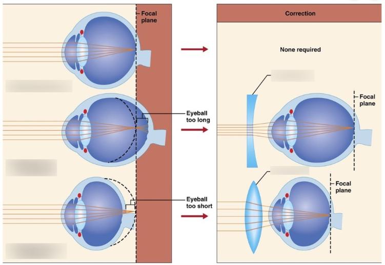 myopia hyperopia